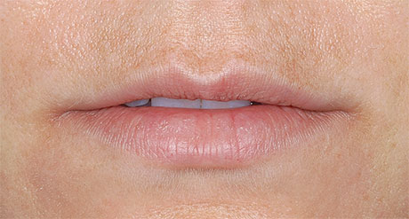 Restylane® Before and After Pictures